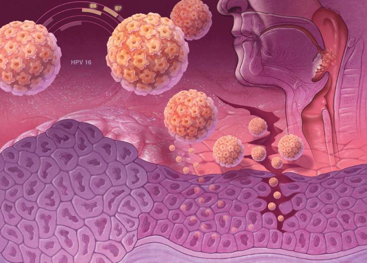 Как передается вирус папилломы человека и как он лечиться