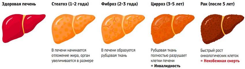 Фиброз печени. что  это такое, как лечить. степени. сколько живут