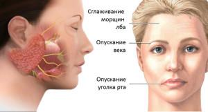 Неврит: причины, симптомы, лечение