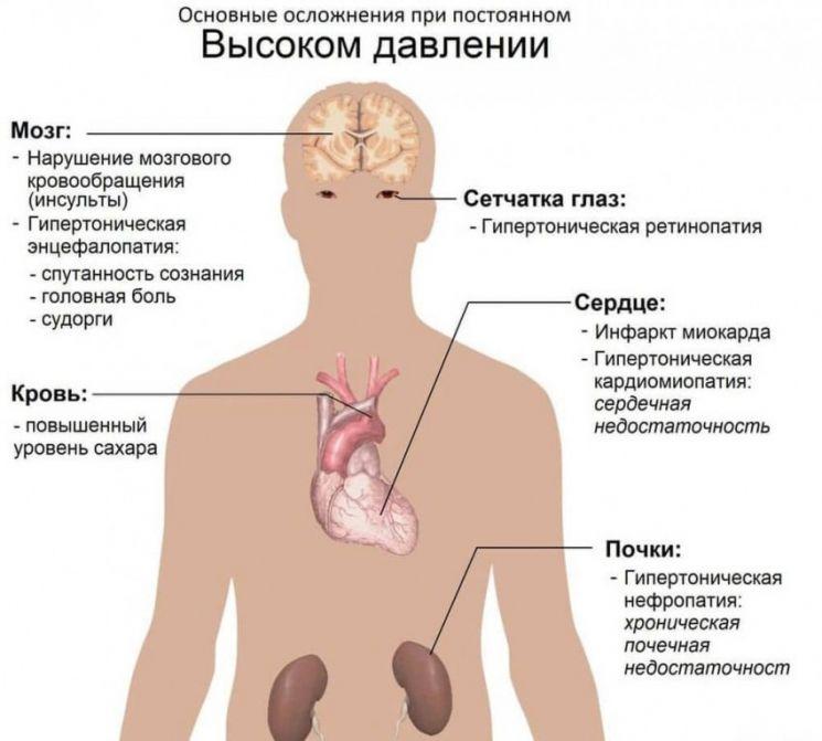 Гипертония (артериальная гипертензия) - что это за заболевание, причины, симптомы повышенного давления, виды и лечение болезни