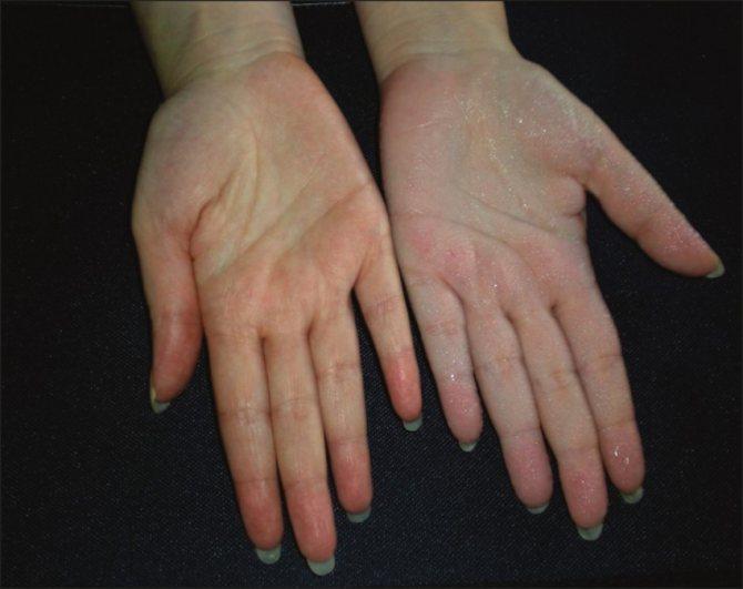 Гипергидроз: что это такое, причины болезни, симптомы, признаки