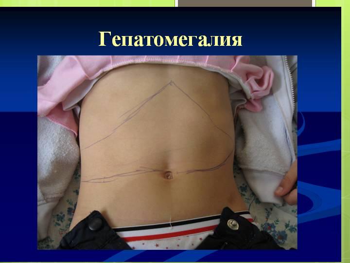 Причины, симптомы, лечение и профилактика спленомегалии