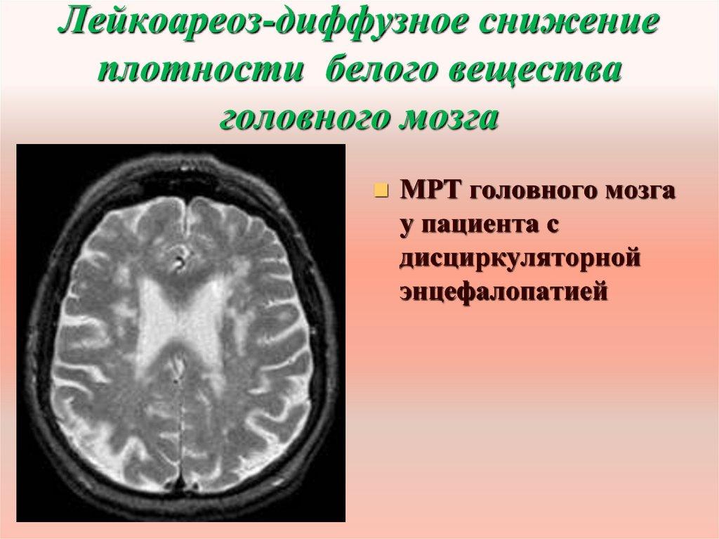 Лейкоареоз головного мозга: что это, причины и лечение | здоровье вашей головы