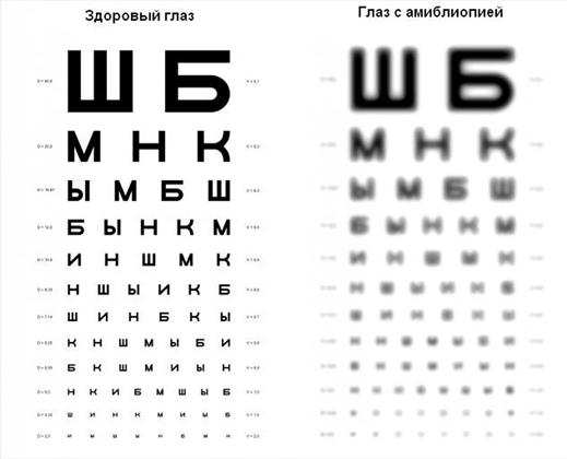 Острота зрения: что это такое и как восстановить?
