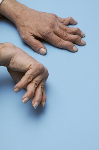 Полиартрит - причины и факторы развития, симптомы, виды, лечение