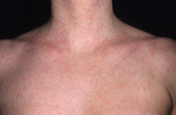 Розеола детская - симптомы, лечение, причины болезни, первые признаки