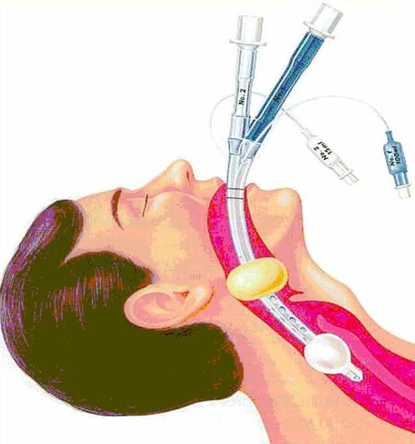 Интубация кишечника — большая медицинская энциклопедия