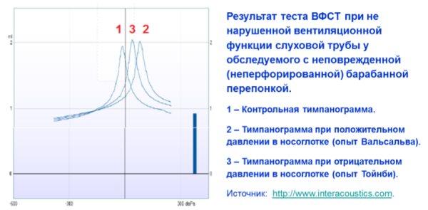Тимпанометрия: что это такое, как проводится и что показывает :: syl.ru