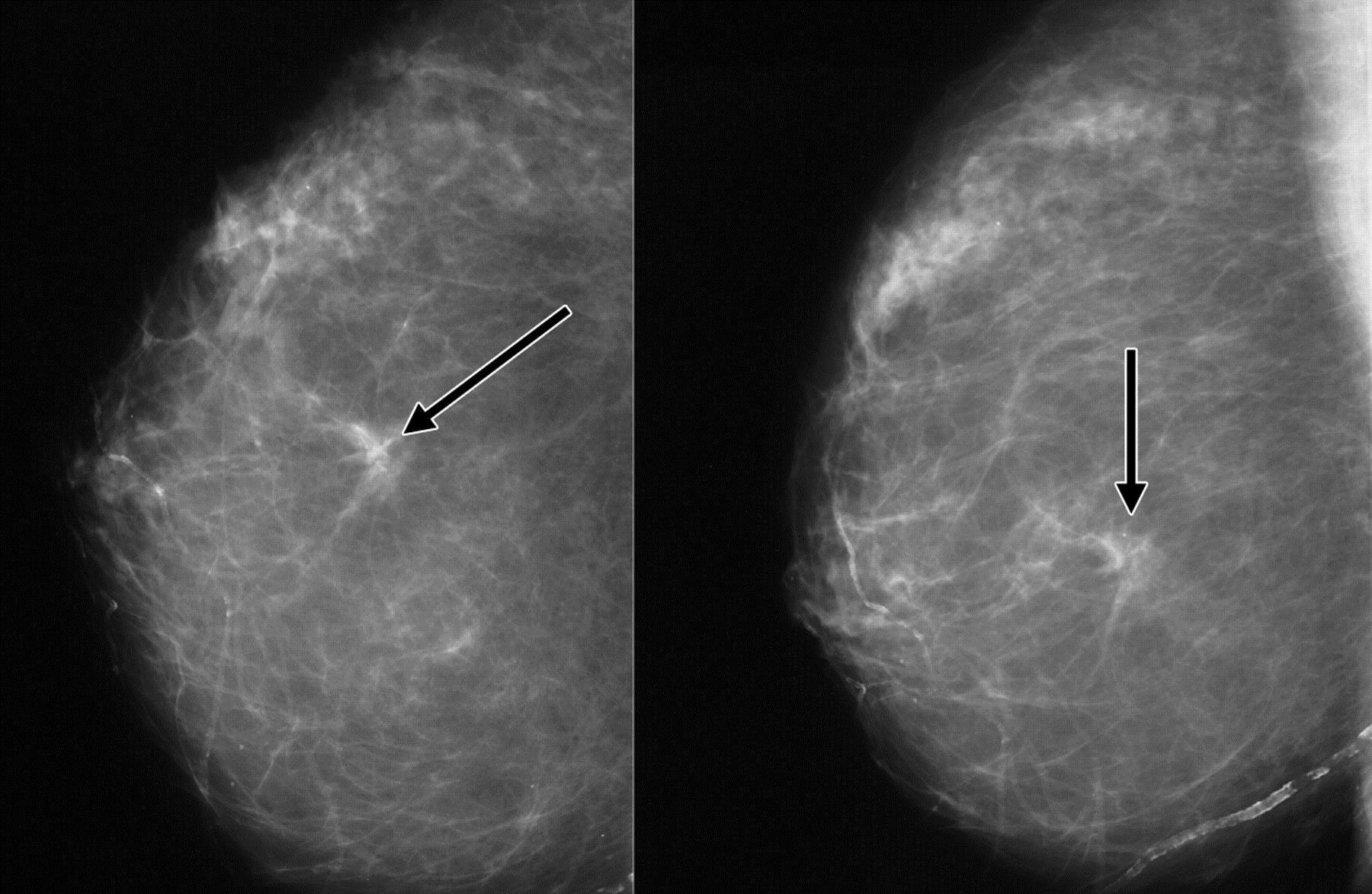 Кальцинаты в молочной железе: это признак рак или нет