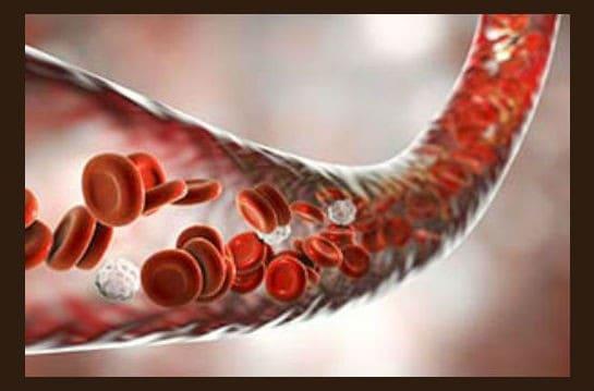 Тромбоз глубоких вен нижних конечностей: симптомы и лечение