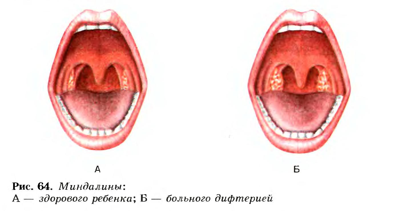 Дифтерия - симптомы, лечение, протекание