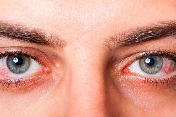 Склера - это оболочка глаза. строение и функции склеры.