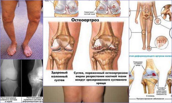Кто рискует заболеть остеоартрозом, ипочему онлечится движением