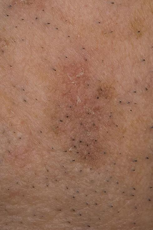 Гиперкератоз кожи: причины, симптомы, фото, лечение, профилактика
