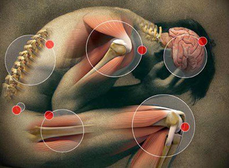 Судороги – причины и лечение