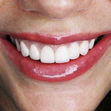 Какие лучше пломбы для зубов — какие они бывают и их виды