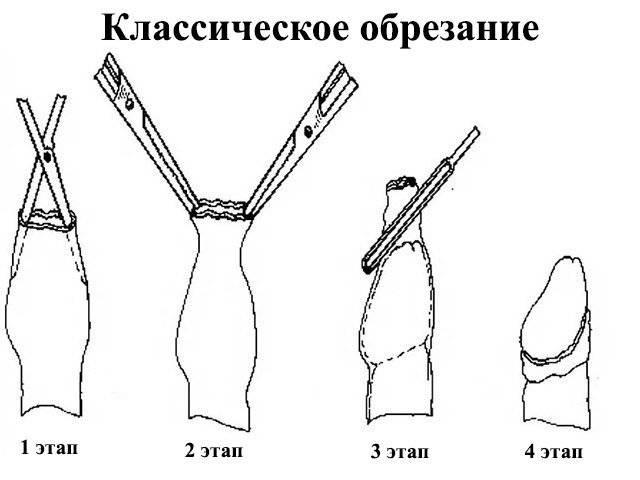 Показания и ограничения к проведению операции обрезания у мужчин
