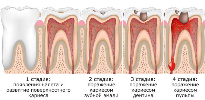 Что такое пульпа в зубе: функции, особенности строения, возрастные изменения