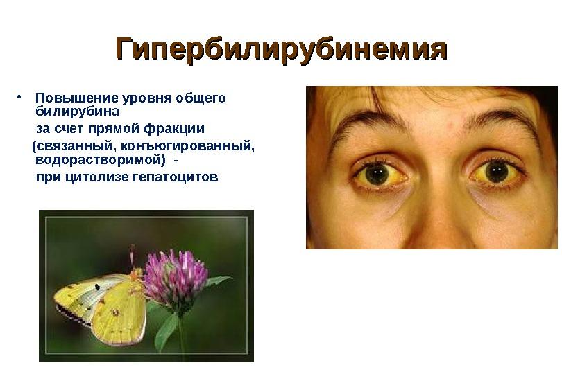 Гипербилирубинемия: что это за болезнь, лечение