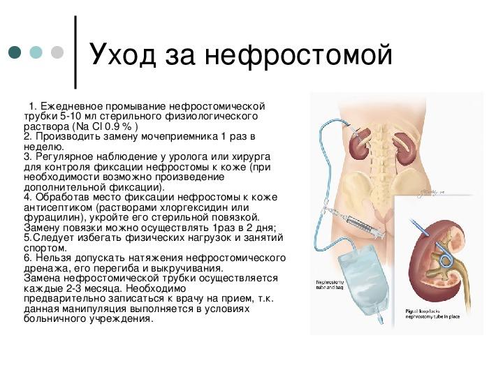 Что такое нефростома - wikinefrologiya.ru