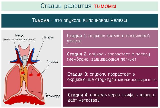 Лечение опухолей средостения в клинике медицина 24/7