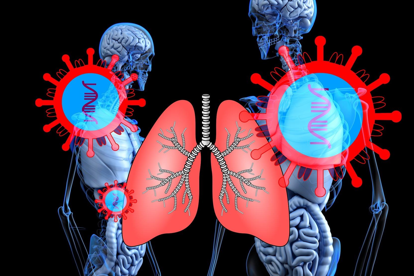 Симптом матового стекла при бронхиальной астме