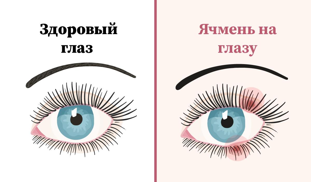 Как лечить ячмень на глазу: от заварки до тетрациклиновой мази