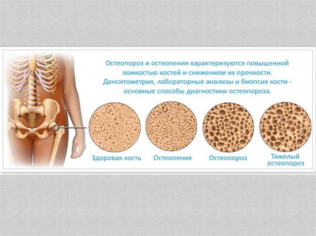 Остеопороз: что это такое, симптомы, причины, лечение