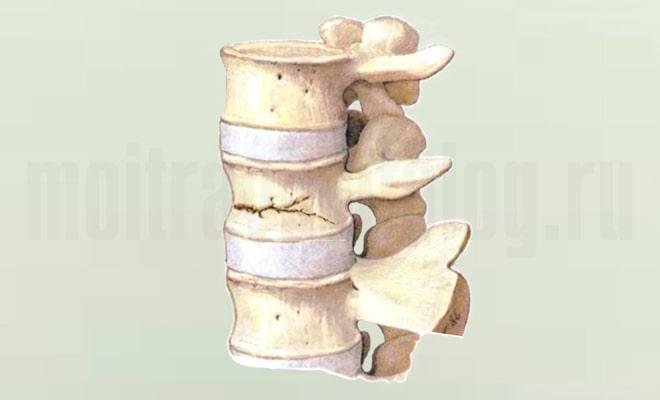 Что такое компрессионный перелом позвоночника