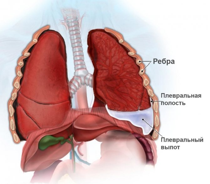 Плеврит легких - формы, симптомы и лечение