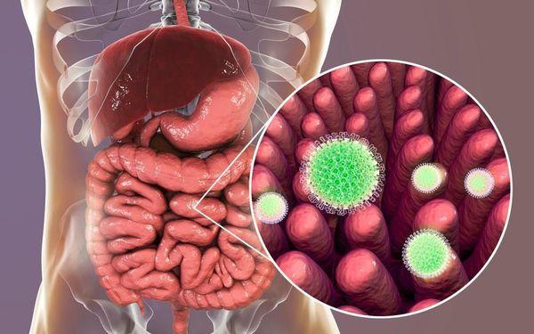 Ротавирусная инфекция (ротавирус)