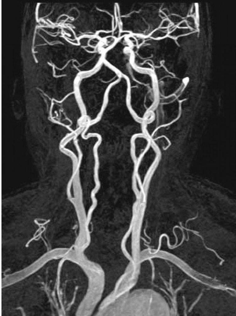 Ангиография сосудов головного мозга: что это такое и как проводится процедура