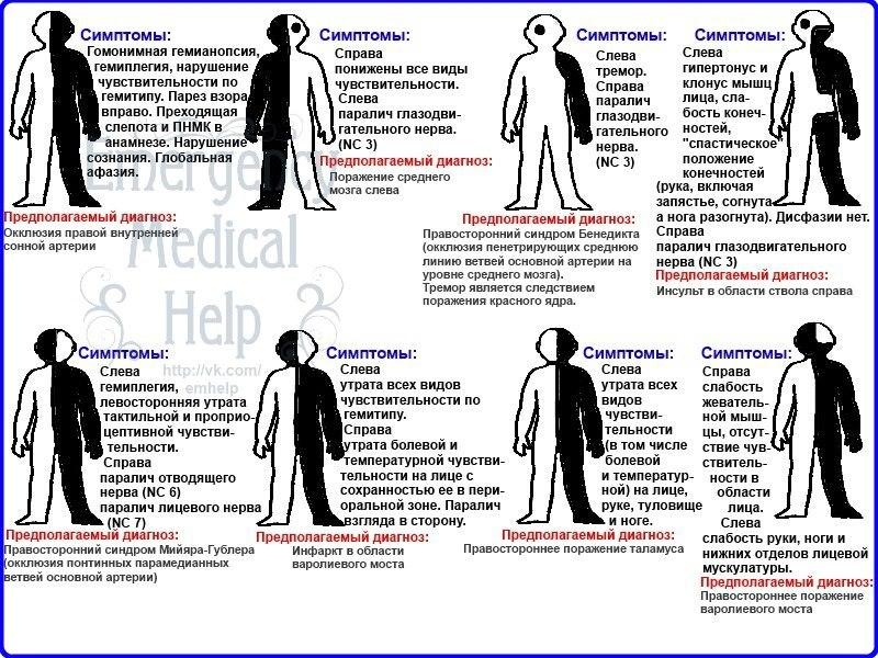 Вестибуло-атактический синдром: причины развития и методы лечения
