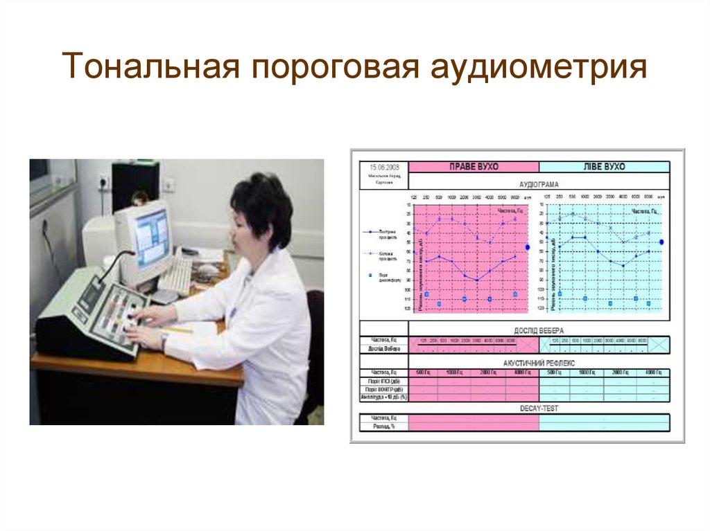 Аудиометрия — большая медицинская энциклопедия
