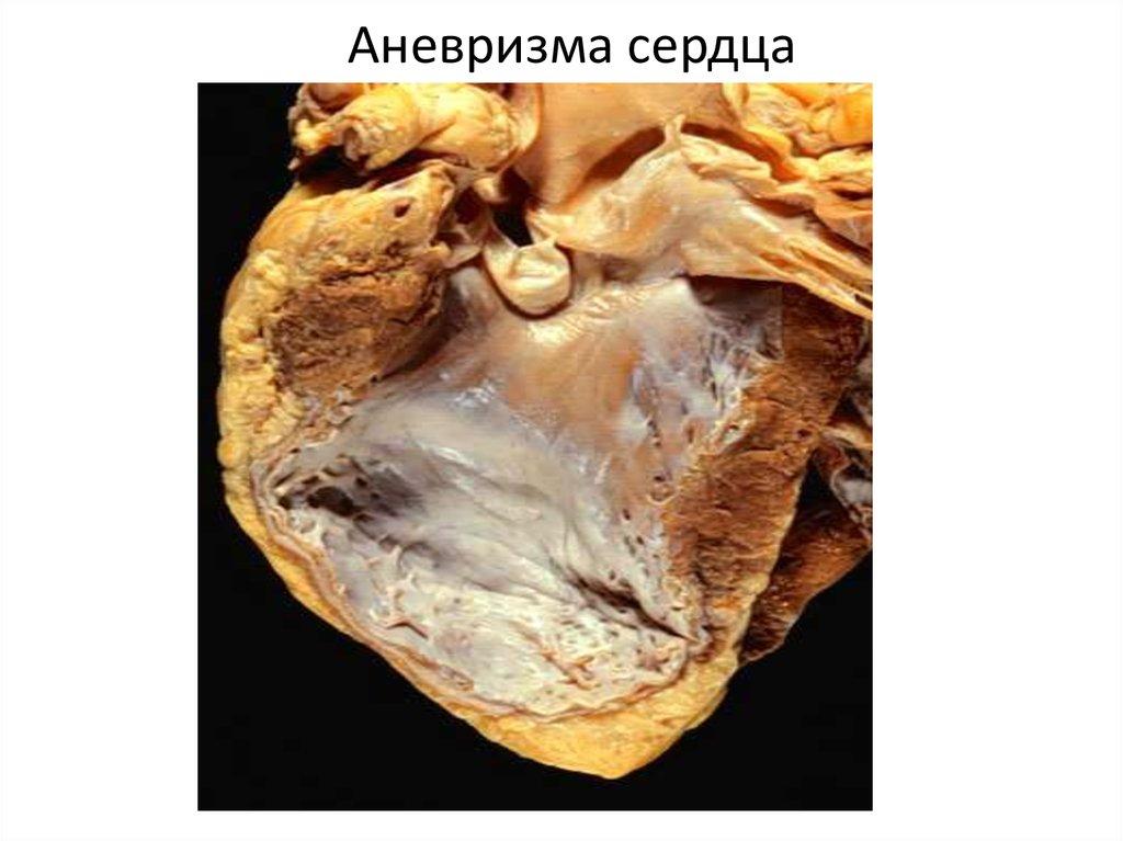 Аневризма сердца: что это такое и симптомы | компетентно о здоровье на ilive