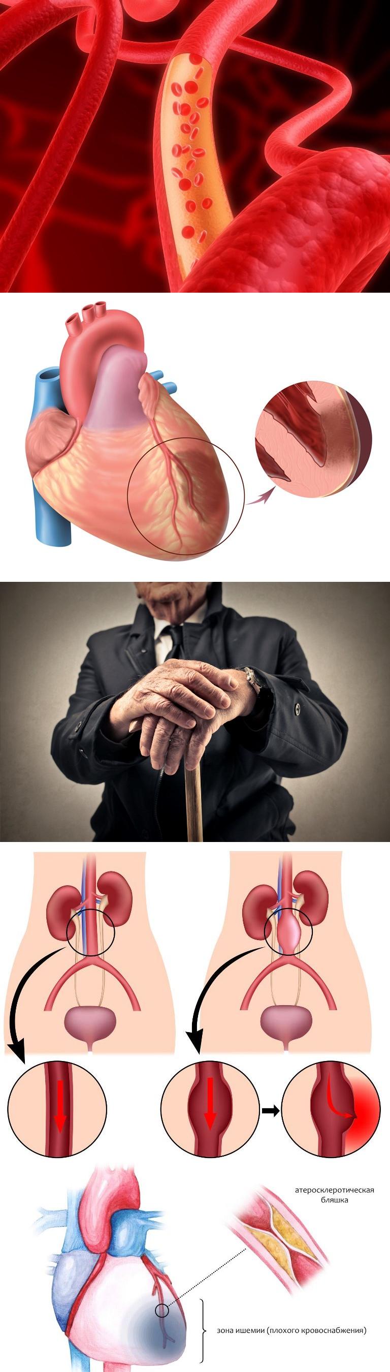 Атеросклероз сосудов сердца - симптомы и лечение. журнал медикал