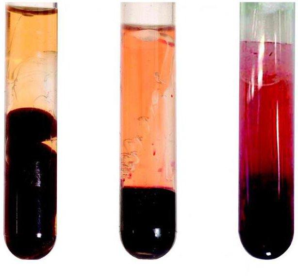 Чем сыворотка крови отличается от плазмы и что лучше для человека