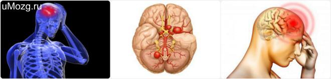 Аневризма сосудов головного мозга: виды, причины возникновения и разрыва, симптомы, диагностика, лечение и профилактика + фото