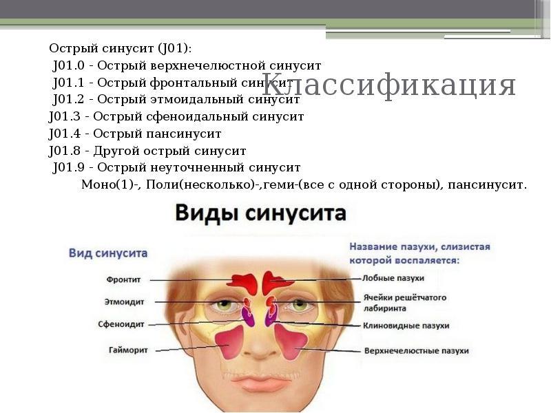 Синусит: симптомы и лечение у взрослых, описание болезни и рекомендации, какой использовать спрей для носа от синусита
