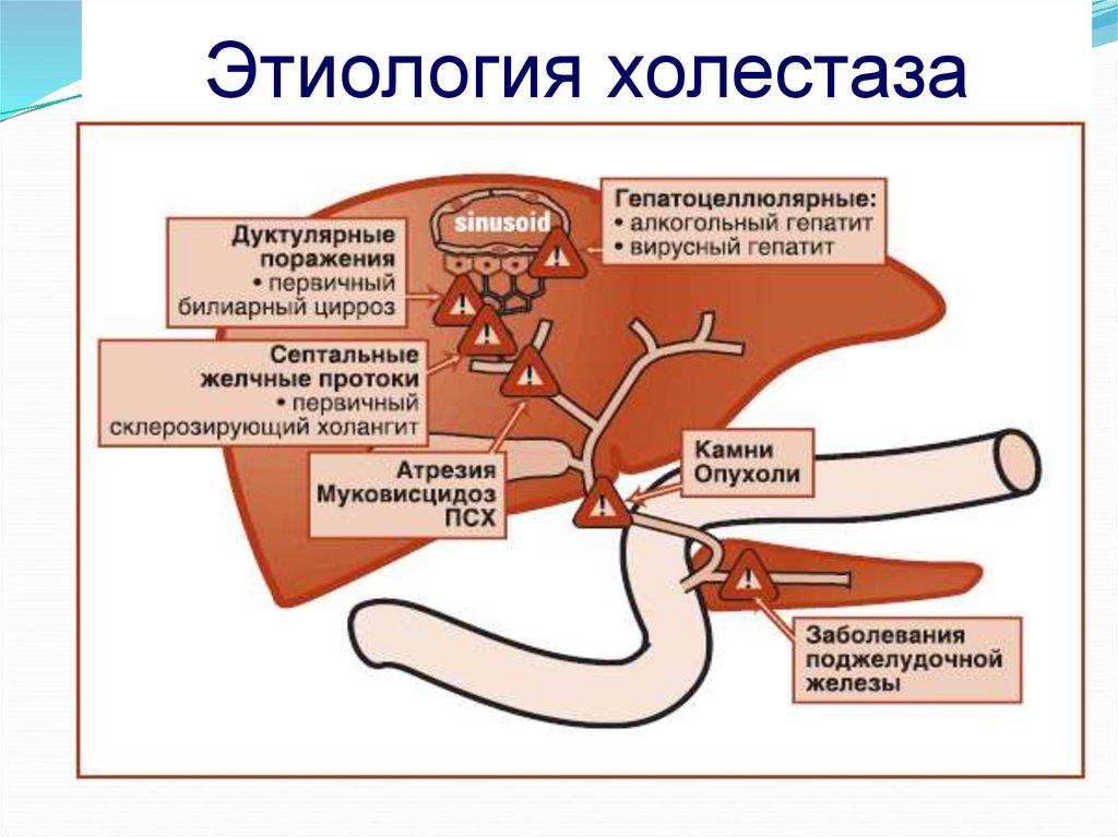 Холестаз: что это за болезнь, причины, симптомы, терапия