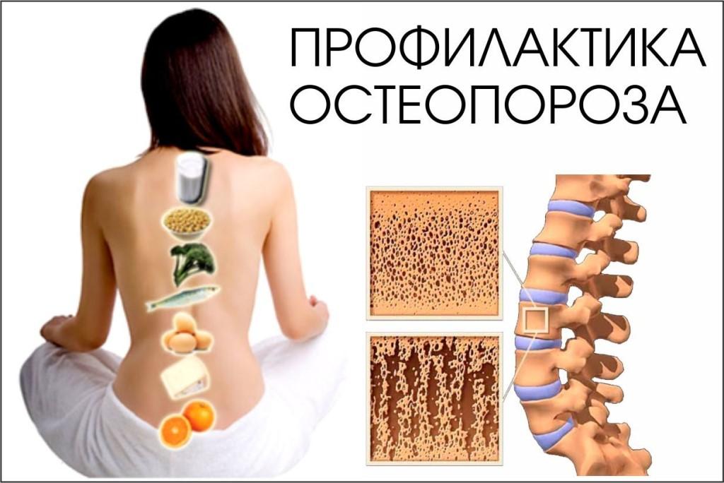 Остеопороз: что это такое, симптомы, причины, лечение и профилактика
