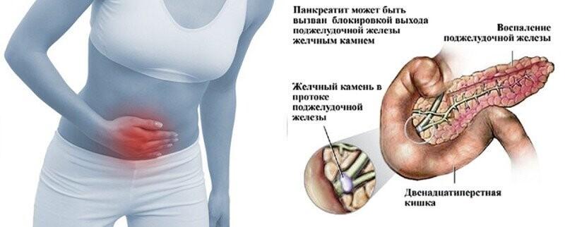 Ферменты поджелудочной железы. нарушение работы поджелудочной железы. панкреатит
