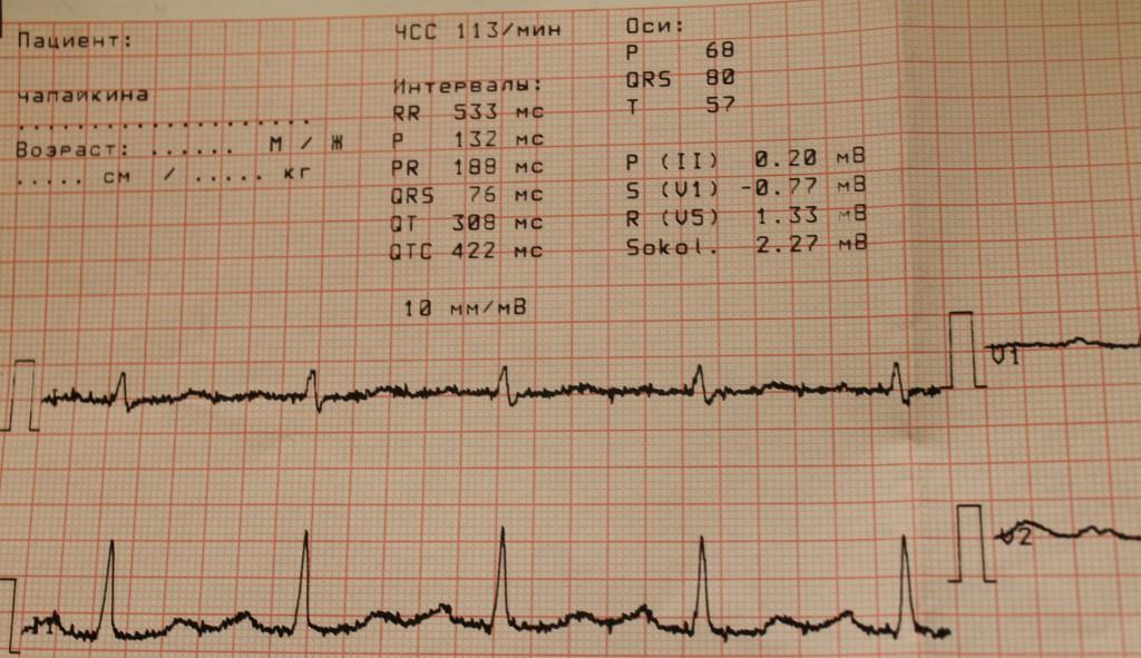 Что такое экг (электрокардиография), показания для электрокардиограммы, расшифровка кардиограммы сердца