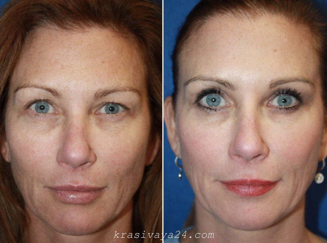 Что такое лазерное омоложение лица — плюсы и минусы, результат до и после