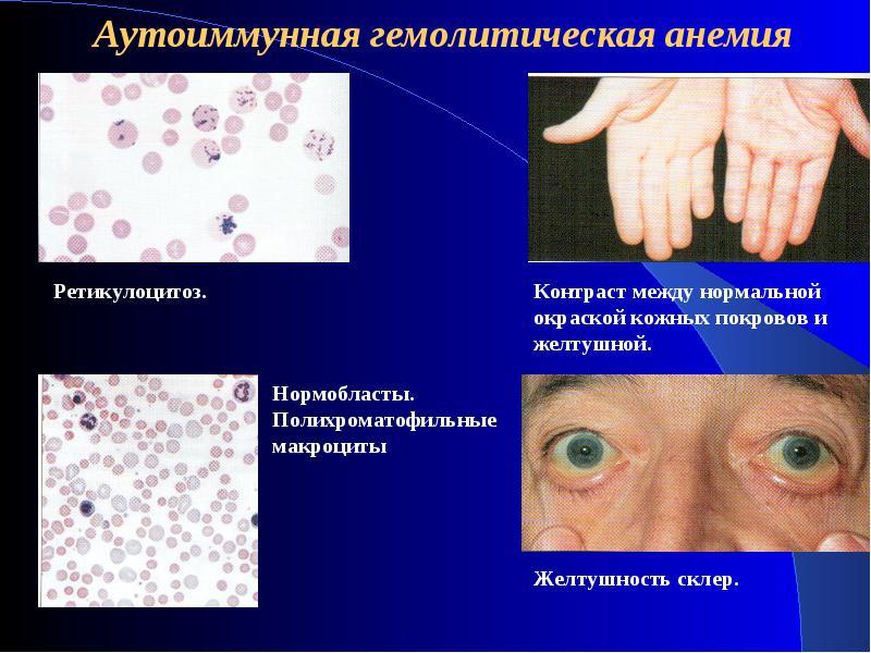Анемия: причины и виды, признаки и проявления, как лечить