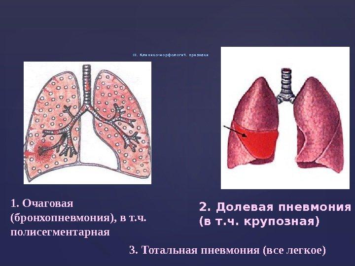 Правосторонняя полисегментарная пневмония - код по мкб-10, что такое левосторонняя у детей и взрослых