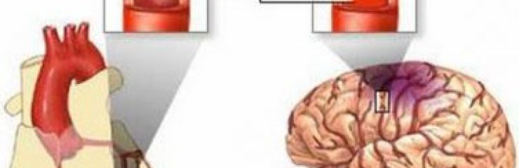 Чем отличается инфаркт от инсульта: основные отличия