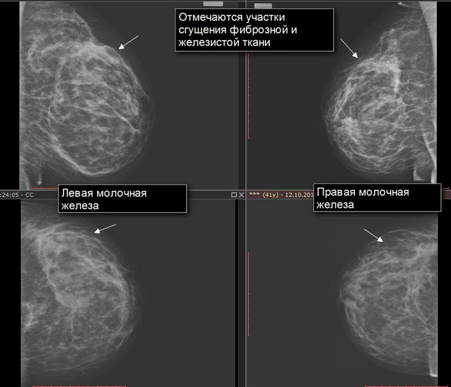 Фиброзная мастопатия: лечение, симптомы, причины и диагностика