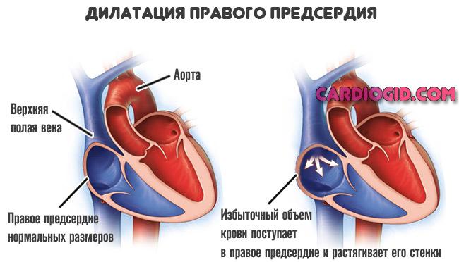 Дилатация левого предсердия: что это такое и как лечить? — сердце