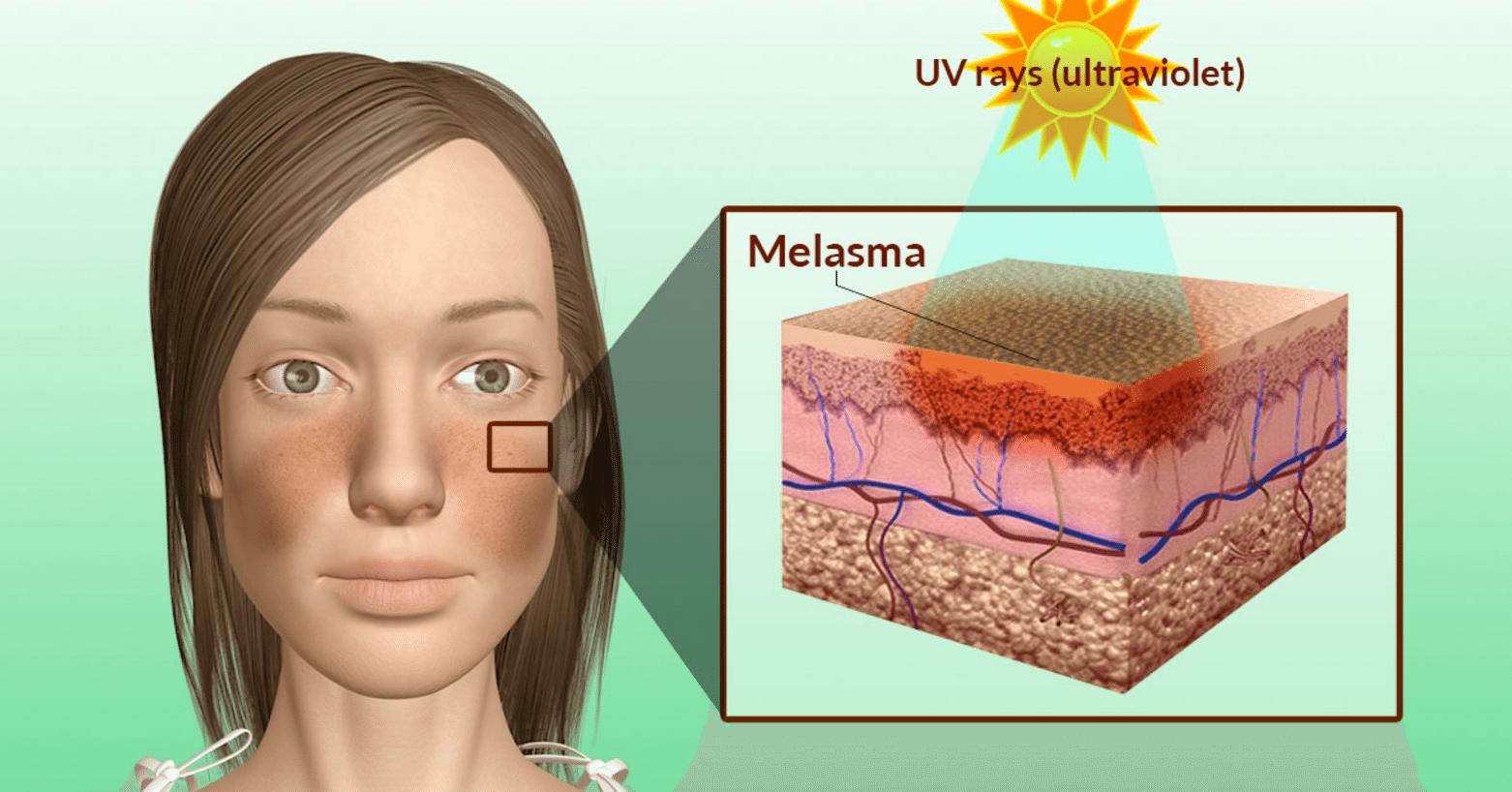 Меланины - химия